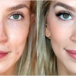 17 Effective Tips for Concealing Acne Scars