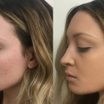 Step By Step: How to Hide Acne With Makeup