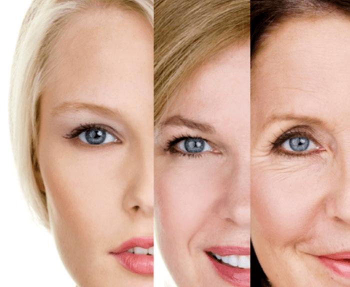 Skin Care - Age Spot Remedies